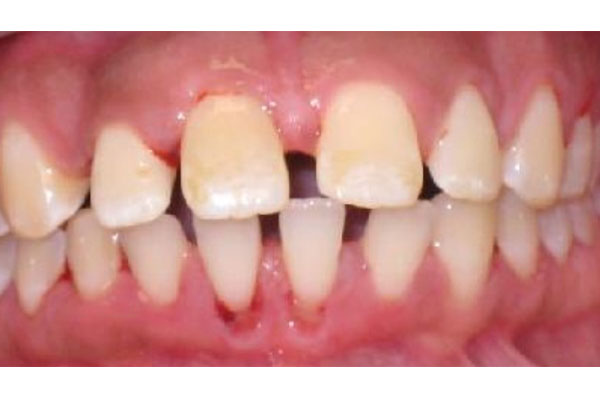 dental before and after photos - Rockville Centre dentist - The Dental Suite
