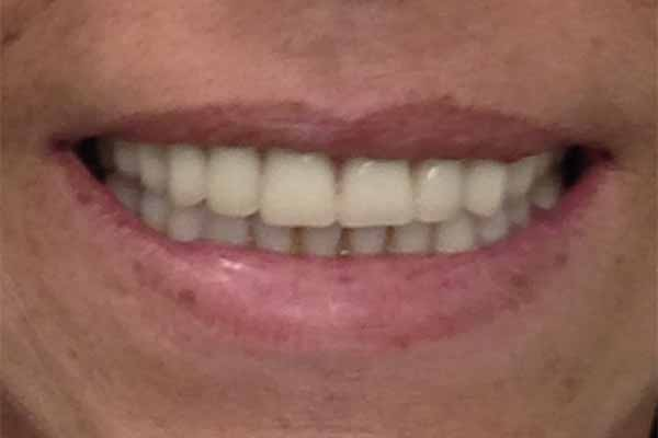 dental before and after photos - Rockville Centre - The Dental Suite